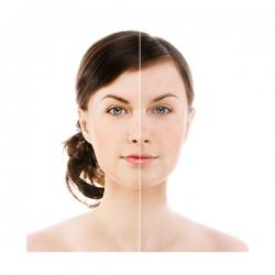 Hloubkově čistící kosmetické ošetření nejen při akné